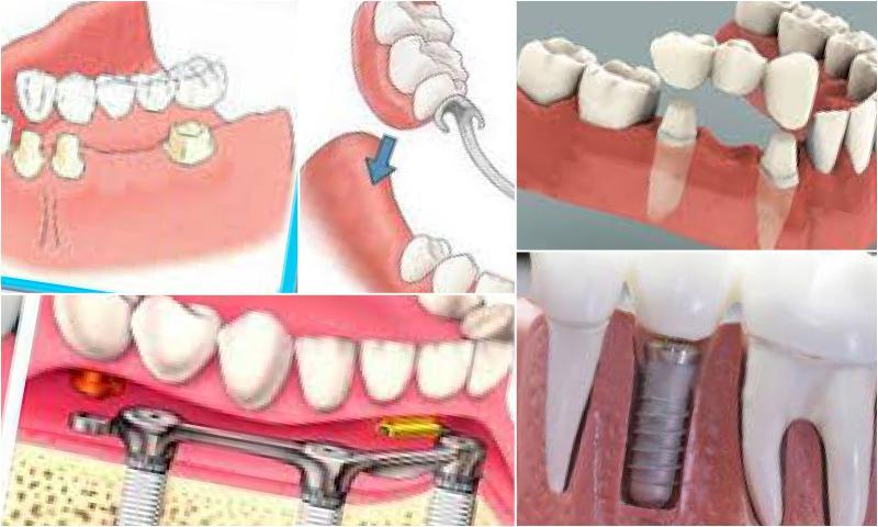 Protetik Diş Tedavisi Nedir?